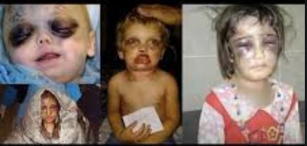 ■児童虐待■