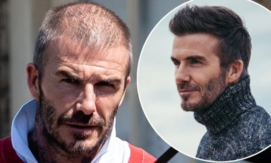 David Beckham shows off thinning hair two years after hair transplant