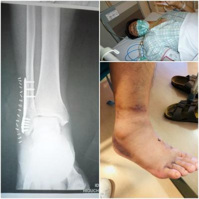 骨折入院手術