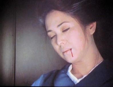 病院坂 (5)