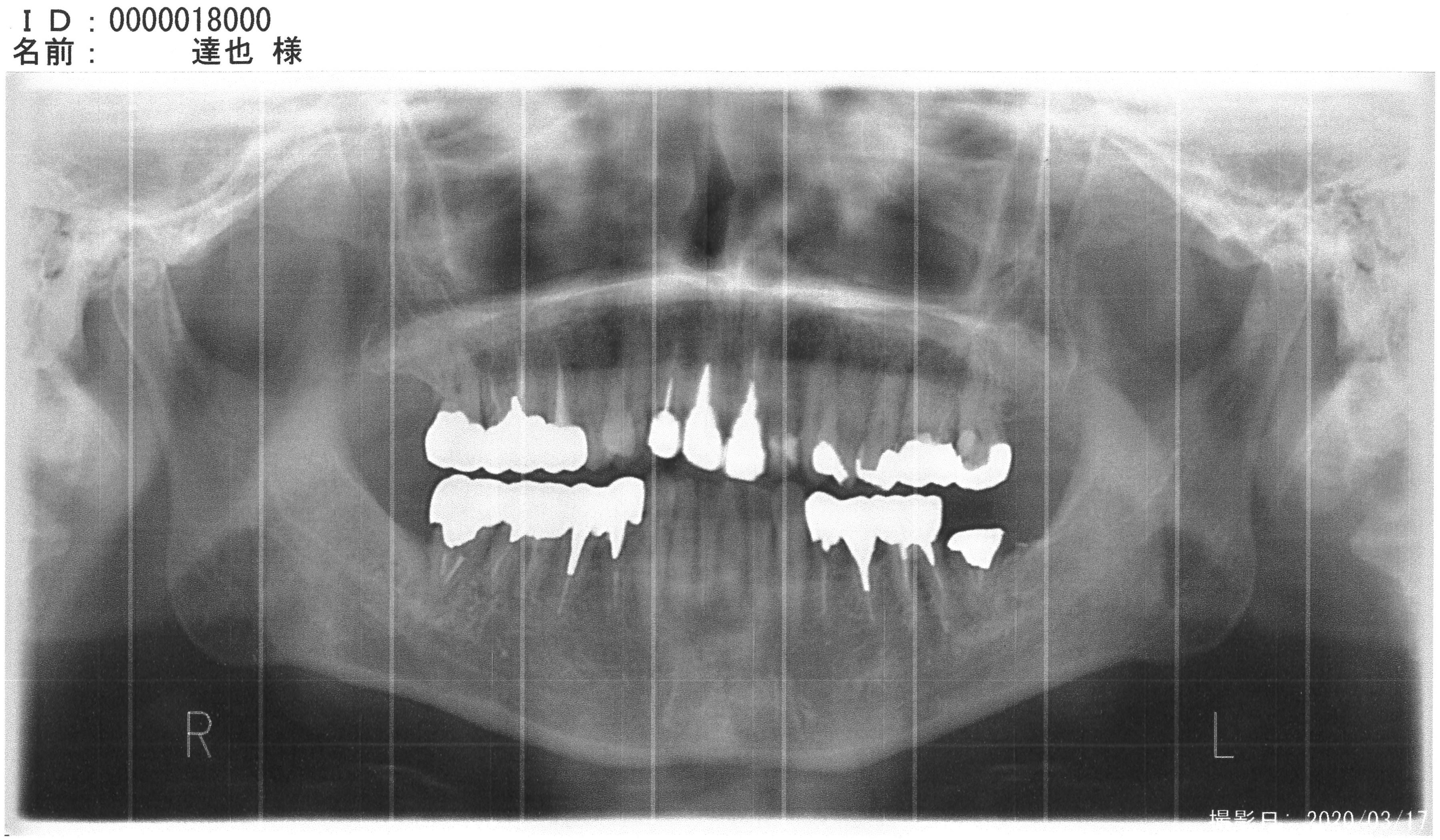 歯痛レントゲンMX-2610FN